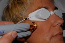 dermatologue nancy laser couperose